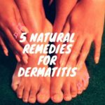5 Natural Remedies for Dermatitis
